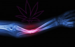 Another Medical Use For Pot: Healing Broken Bones